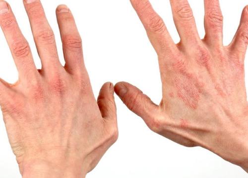 Аллергия на ультрафиолет - «Московский Доктор»