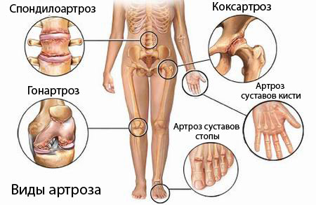 Артроз коленного сустава симптомы - «Московский Доктор»