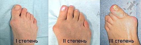 Артроз ступни