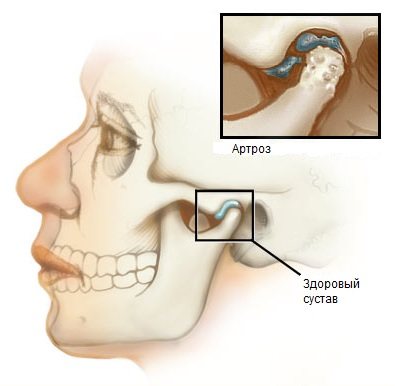 Артроз челюстного сустава - «Московский Доктор»
