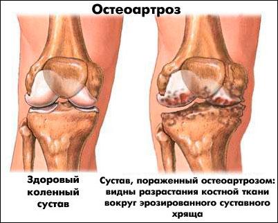 Артроз суставов фото - «Московский Доктор»