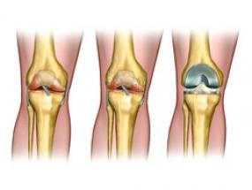 Мениск коленного сустава операция