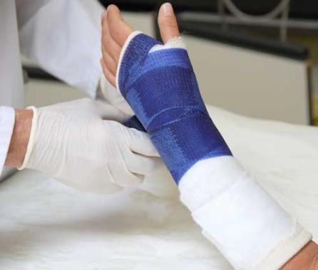 Гипс при переломе лучевой кости - «Московский Доктор»