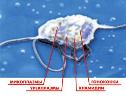 Инфекция трихомониаз